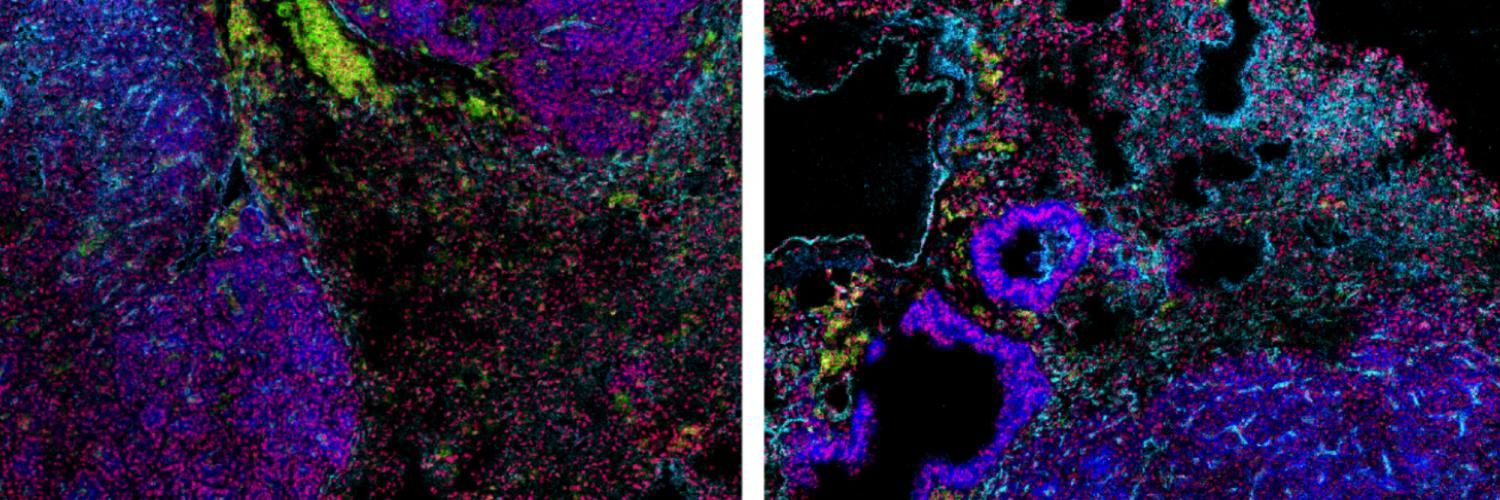 Mass cytometry images of carcinogen induced lung tumours in mice.