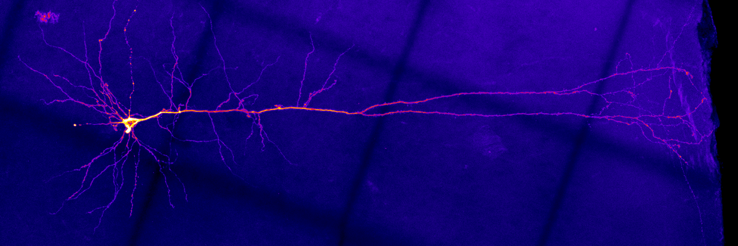 Image of nerve cells researchers in the Rancz lab study.