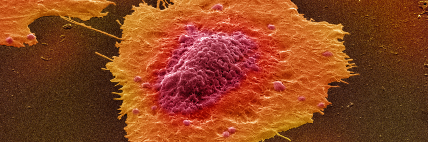 Colour-enhanced image of human colon cancer cells in culture