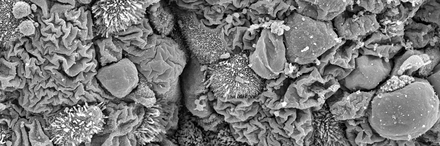 Scanning electron micrograph of epithelia lining the airways.