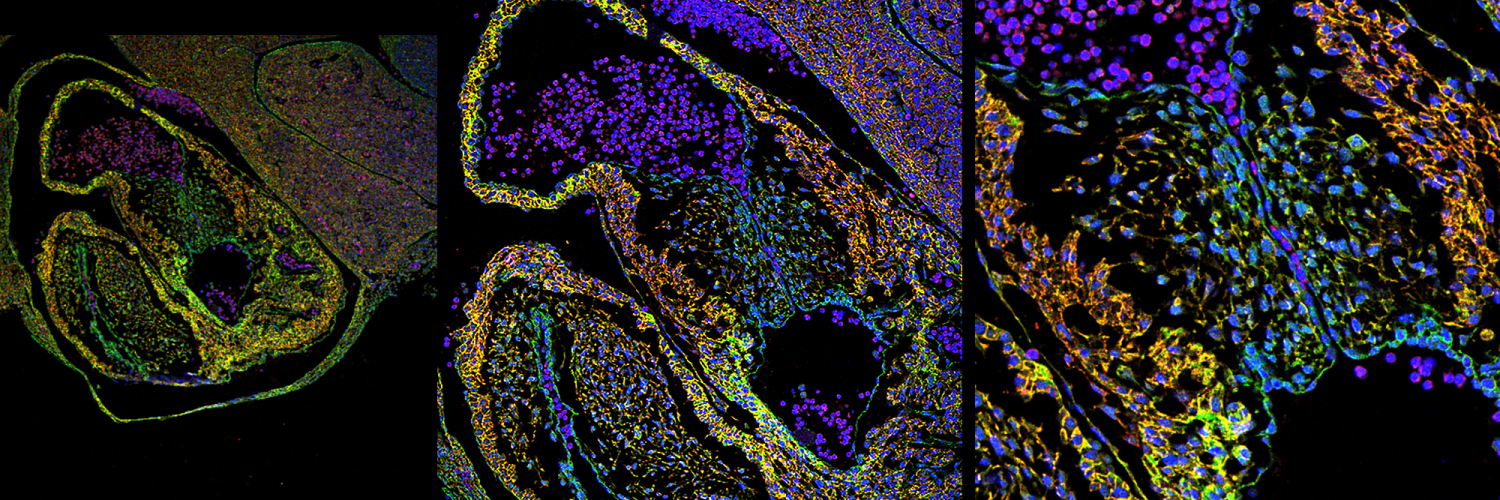 Immune cells images with help from the Crick's Light Microscopy STP.