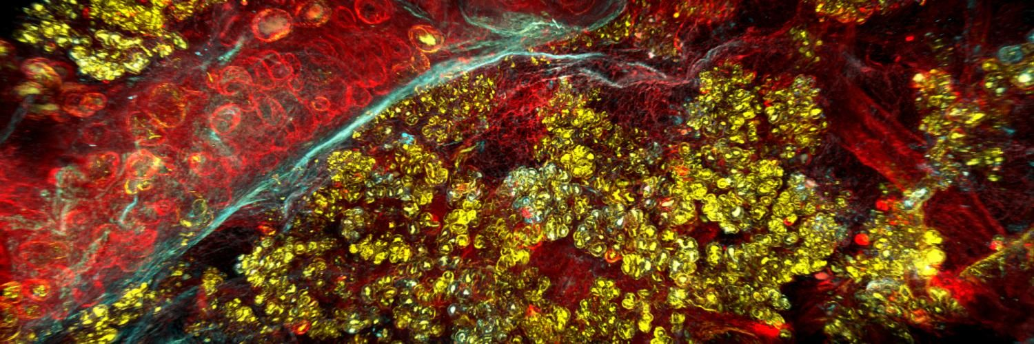3D imaging of pancreas hyperplasia