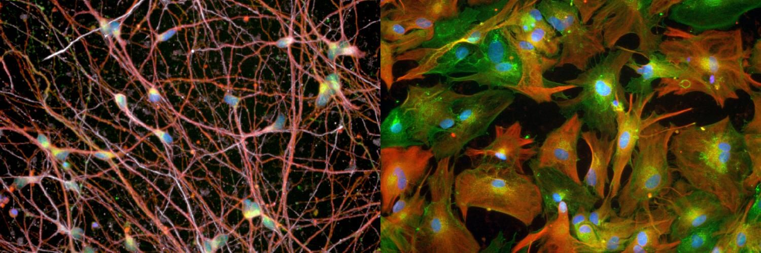 Spinal motor neurons (left) and astrocytes (right).