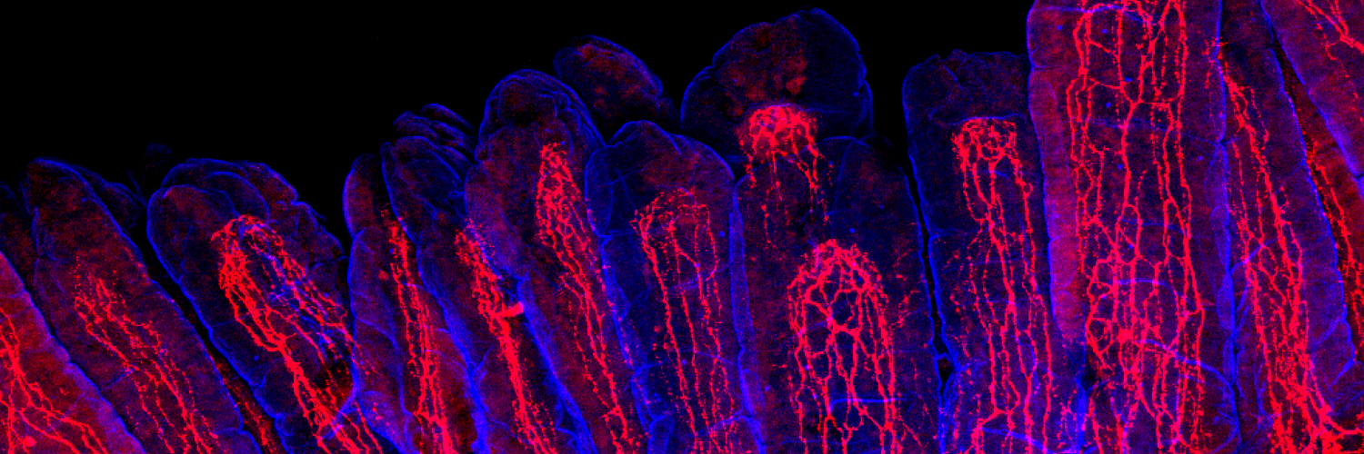 Credit Yuuki Obata and Álvaro Castaño, The Francis Crick Institute. Villi with neuronal fibres.