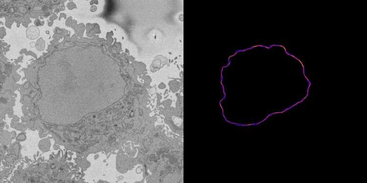 A slice through of a cell (on the left) and the averaged lines submitted by citizen scientists on the right.