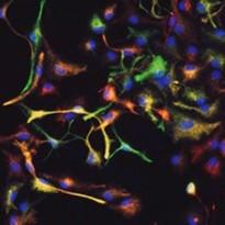 Neural stem cell culture