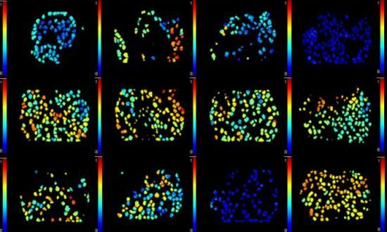 In vivo images of individual cells in ovarian tumours in mice.