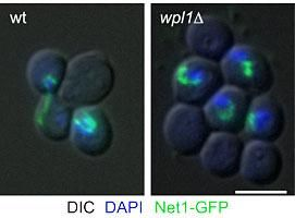 The budding yeast rDNA locus, here visualized via a fluorescent rDNA binding protein, comprises ca. 500 μm of DNA