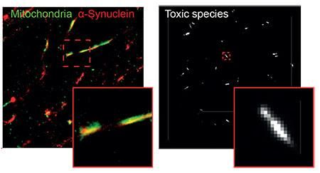 Super resolution image of α-synuclein in mitochondria of neuron (left) and single molecule TIRF image of individual α-synuclein aggregates (right)