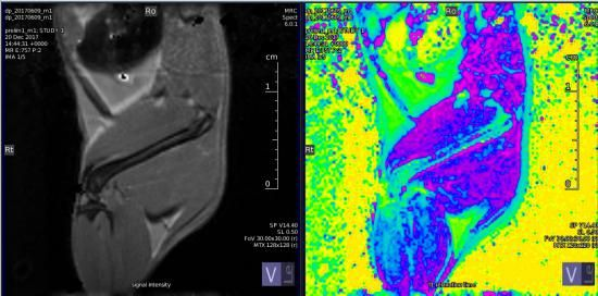 MRI scans of the femur bone of a mouse. Left column: anatomical image, right column: T1 map. Crick researchers use the T1 map, combined with other types of MRI scans, to understand where blood is being delivered, as well measuring the leakiness of blood vessels.