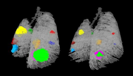 Image showing a mouse lung before and after treatment, with tumours indicated by different colours. The tumours on the right are visibly smaller.