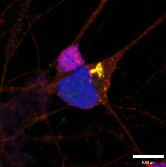 Credit: Phillip Smethurst. Image shows a human stem cell-derived motor neuron exhibiting classic motor neuron disease pathology.