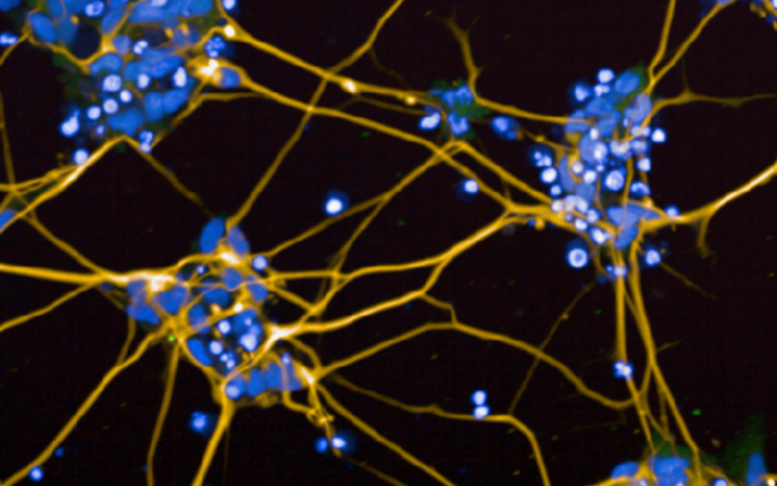 Dopaminergic neurons generated from human induced pluripotent stem cells. Blue stain for the nuclei and yellow stain for tyrosine hydroxylase, a dopaminergic neuron marker.